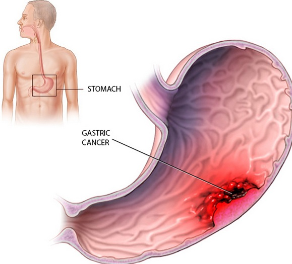 Kacang Tanah Untuk Mencegah Kanker Perut